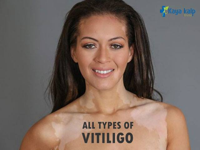 Best Vitiligo Treatment in Delhi