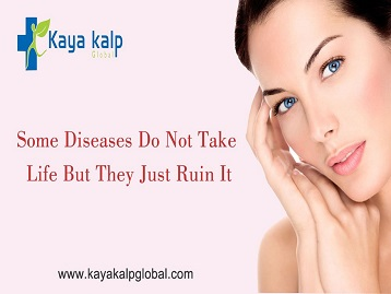 Why Kayakalp Global?