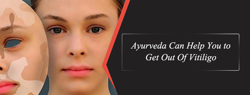 Ayurveda Can Help You to Get Out Of Vitiligo