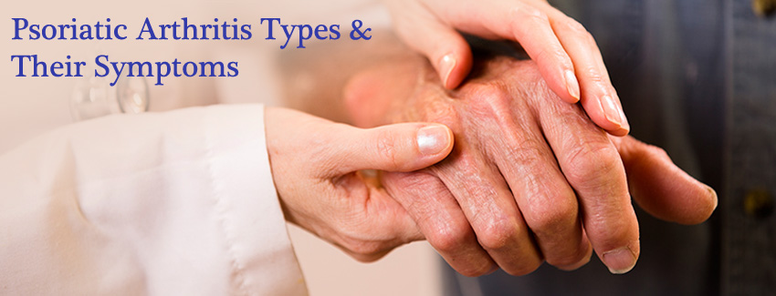 Psoriatic Arthritis Types and Their Symptoms