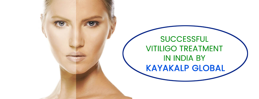Know More About  Vitiligo Diet for Vitiligo Patient