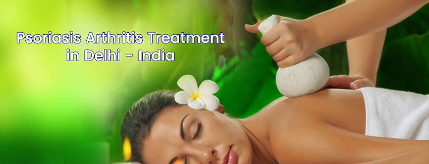 Psoriasis Arthritis Treatment in Delhi - India