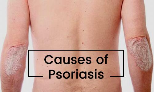 female genital psoriasis