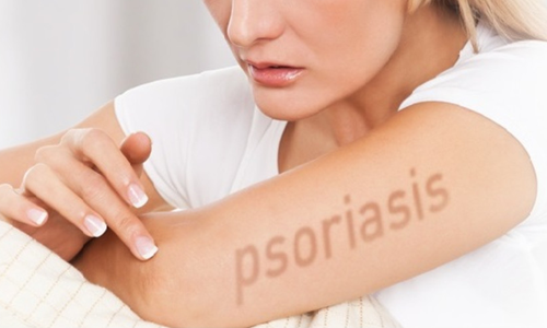 Psorcure Treatment Approach
