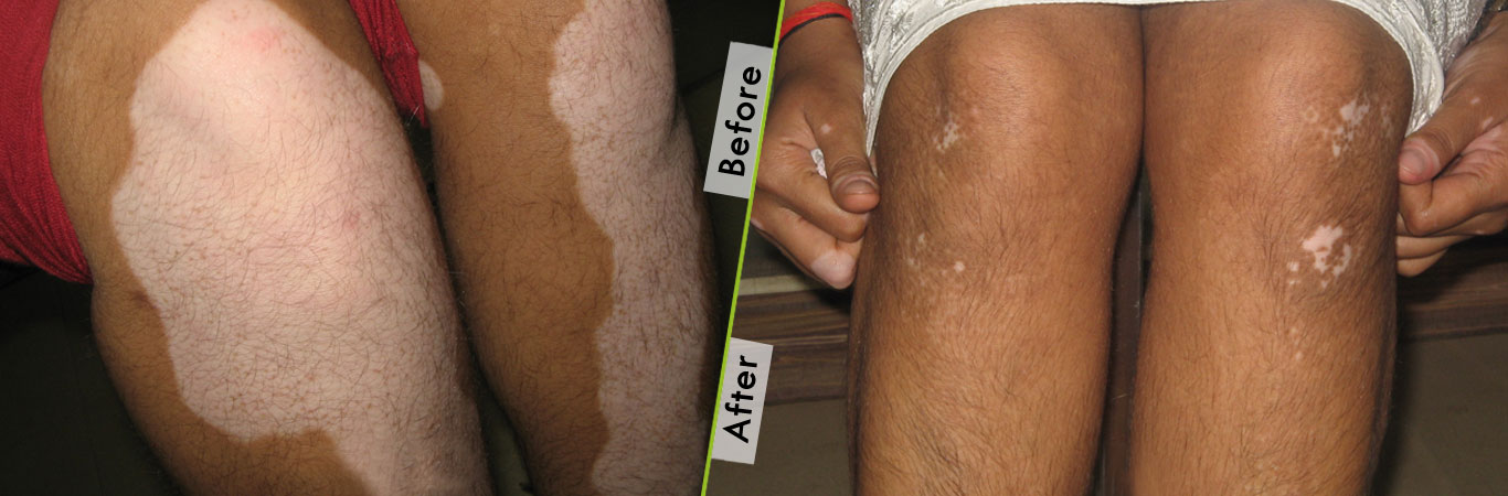 Vitiligo Specialist treatment in India