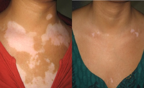 Vitiligo Specialist Doctor in Delhi NCR India