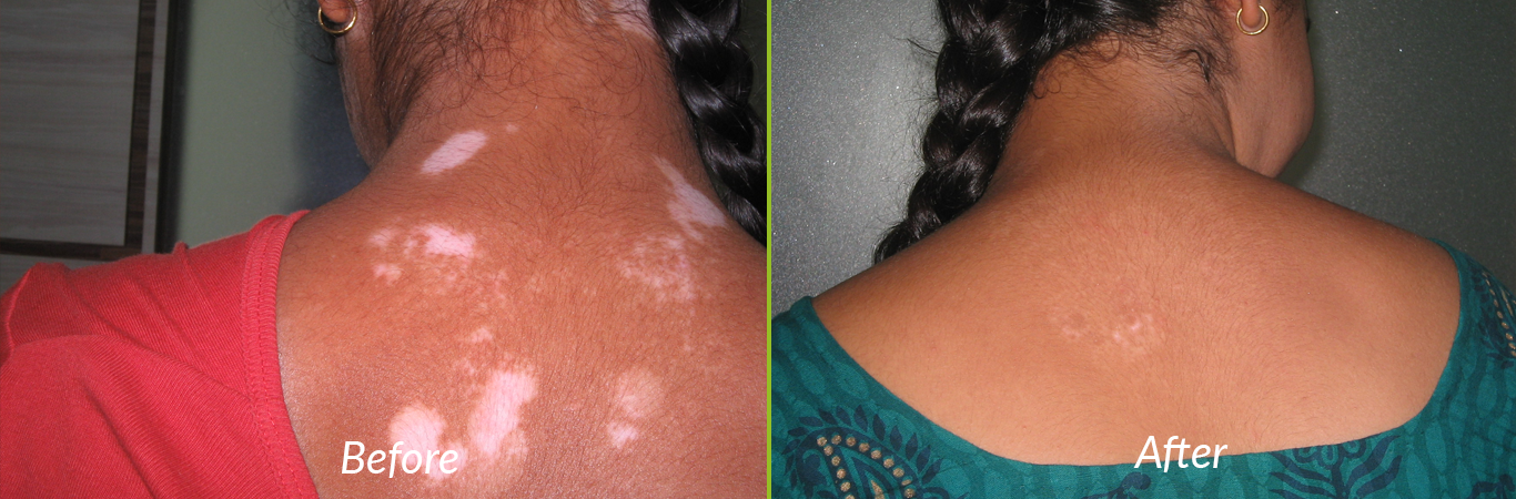Best Leucoderma Treatment in India
