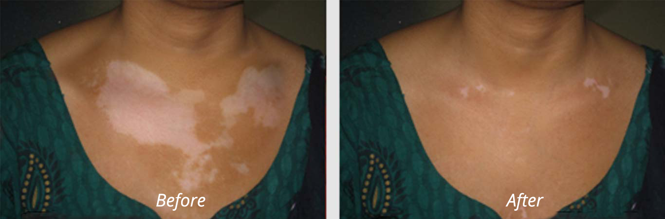 Best Vitiligo Treatment in India